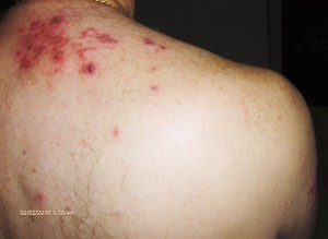 Herpes Zoster Shingles